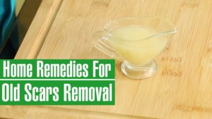 Remove Scars Naturally – Inexpensive Ways of Reducing Scars