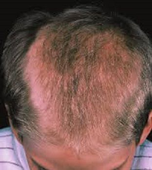 Cause Of Hair Loss – A Comprehensive 13 Point Checklist