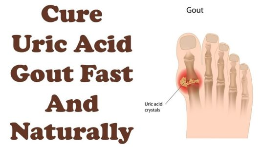 Easy Uric Acid Cure – How to Eliminate Uric Acid Gout in 2 Hours With Bicarbonate of Soda