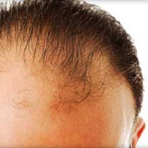 Hair Loss – Cause, Prevention and Treatment