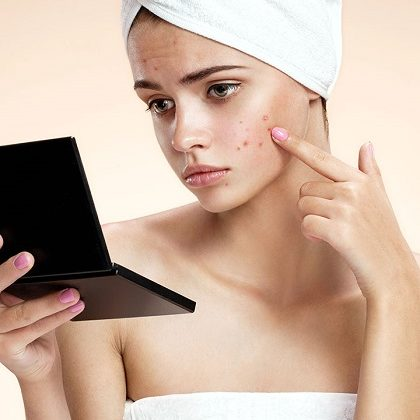 Natural Methods Are The Best Treatment For Acne